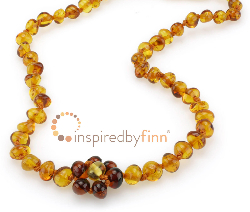 <u>Baltic Amber Anklet - Adjustable<br></u>Polished Lemon Drop Flower