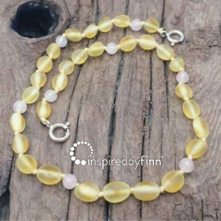 <u>NEW! Baltic Amber Anklet - Adjustable<br>Unpolished Lemon Rose Quartz</u>