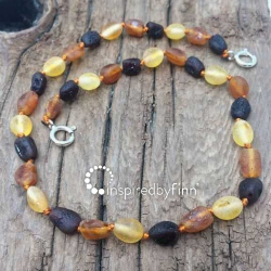 <u>NEW! Baltic Amber Anklet - Adjustable<br>Unpolished Variation</u>