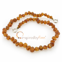 <u>Baltic Amber Anklet - Adjustable<br></u>Unpolished Cider