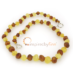 <u>Baltic Amber Anklet - Adjustable<br></u>Unpolished Mixture